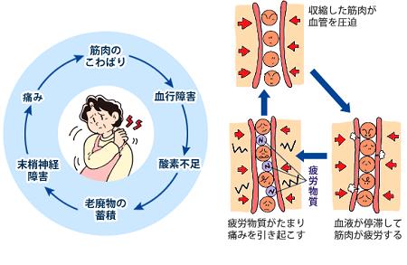 自律神経失調症の症状・診断・治療~大阪豊中やす …